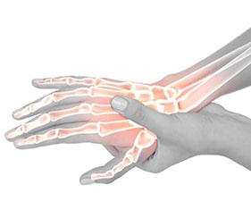 כאבים בידיים