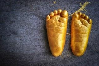 רגליים שטוחות - פלטפיט