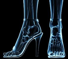 מבנה כף הרגל בתוך נעלי עקב