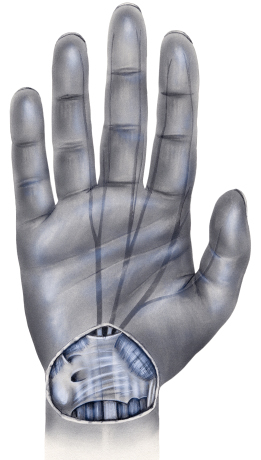 CTS - כאבים בשורש כף היד